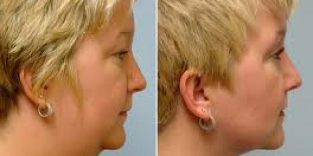 Vücuttan Nasıl Yağ Aldırılır,liposuction,yöntemi